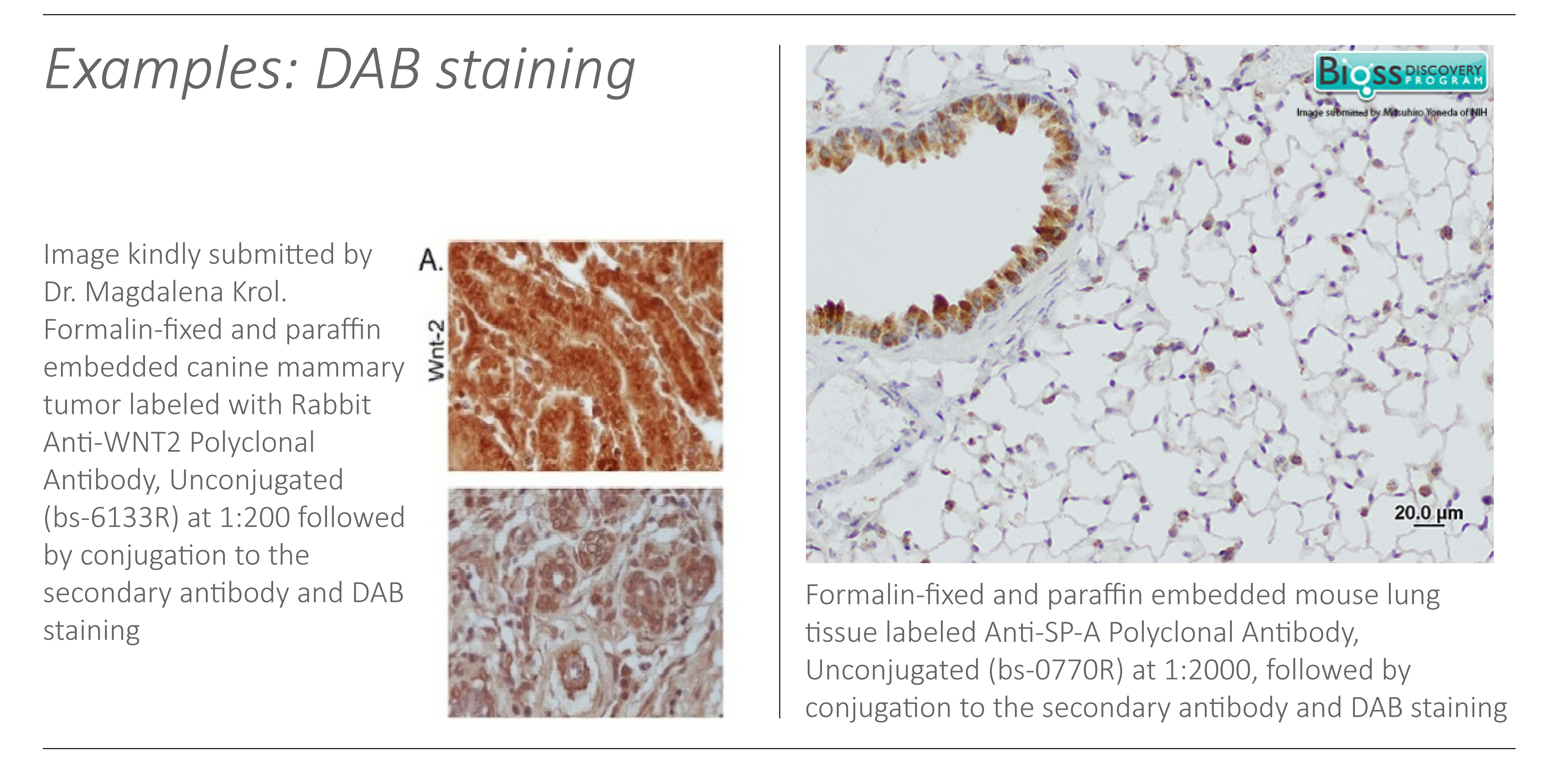 DAB staining examples